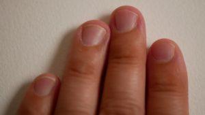 短い爪をすらっとした長い爪にしたい!深爪矯正のやり方と注意点